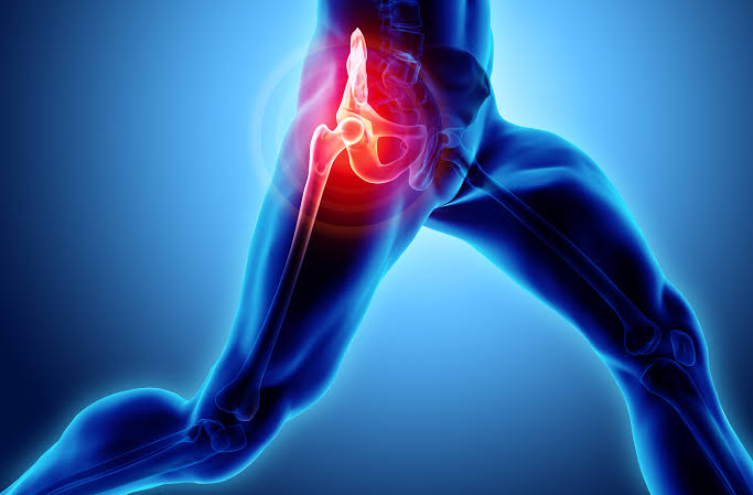 HIP PAIN: is it arthritis or something else?